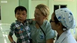 UK plastic surgeon helps children