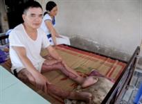 Unexploded ordinance victim Nguyen Van Thi